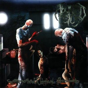 Aborted Fetus - Goresoaked Clinical Accidents (2008)